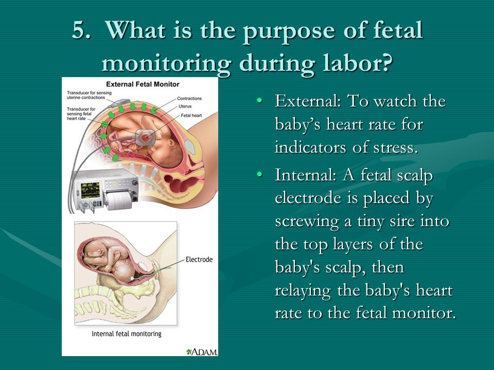 5. What is the purpose of fetal monitoring during labor
