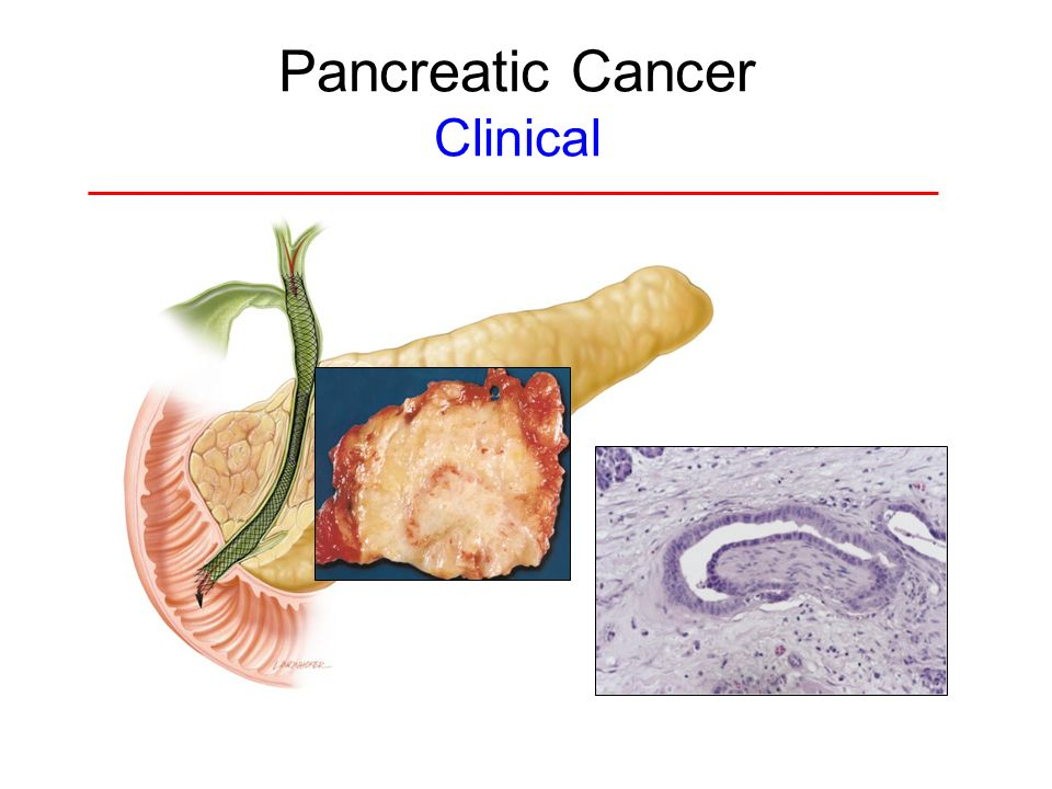 pancreatic cancer essay conclusion Pancreatic cancer cancer of the pancreas is a genetic disease that is the fifth most common cause of death in according to physicians at johns hopkins medical institute, pancreatic cancer is the challenge of the twenty-first century so, where exactly is the pancreas located in our bodies, and.