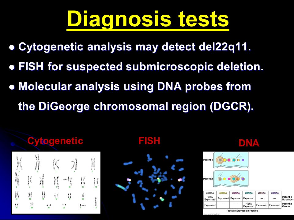 Digeorge syndrome imad fadl elmula ppt video online download for Fish genetic testing