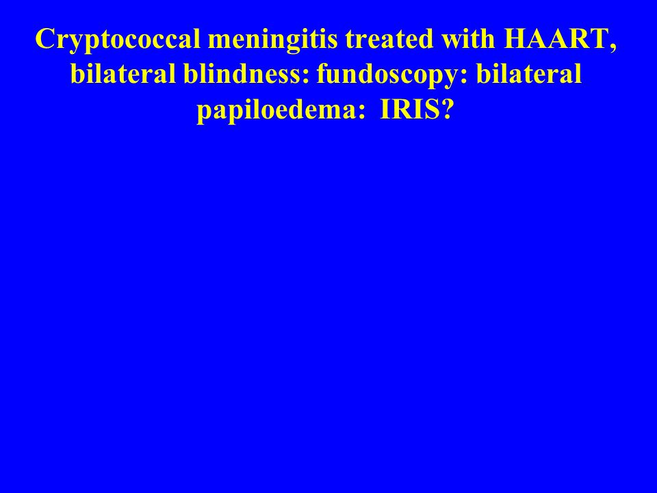 Cryptococcal meningitis treated with HAART, bilateral blindness: fundoscopy: bilateral papiloedema: IRIS