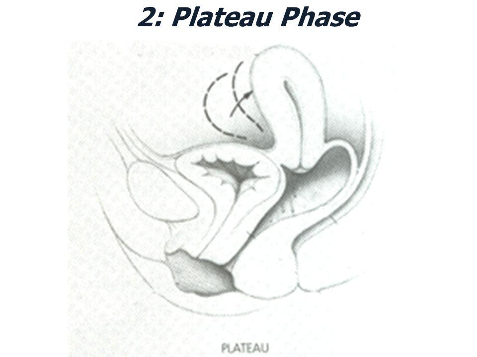 2: Plateau Phase