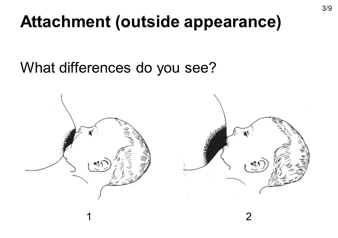 Attachment (outside appearance)