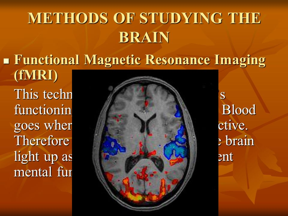 studying methods of the brain Cognitive psychology: 7 techniques for studying the brain posted on august 19, 2012 by michael cunningham this post will be dealing with a more science oriented approach to psychology known as cognitive neuroscience, which is a branch of psychology that involves intensive study of the brain as well as behaviour.