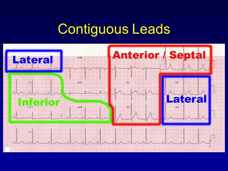 Basics of EKG Interpretation - ppt video online download