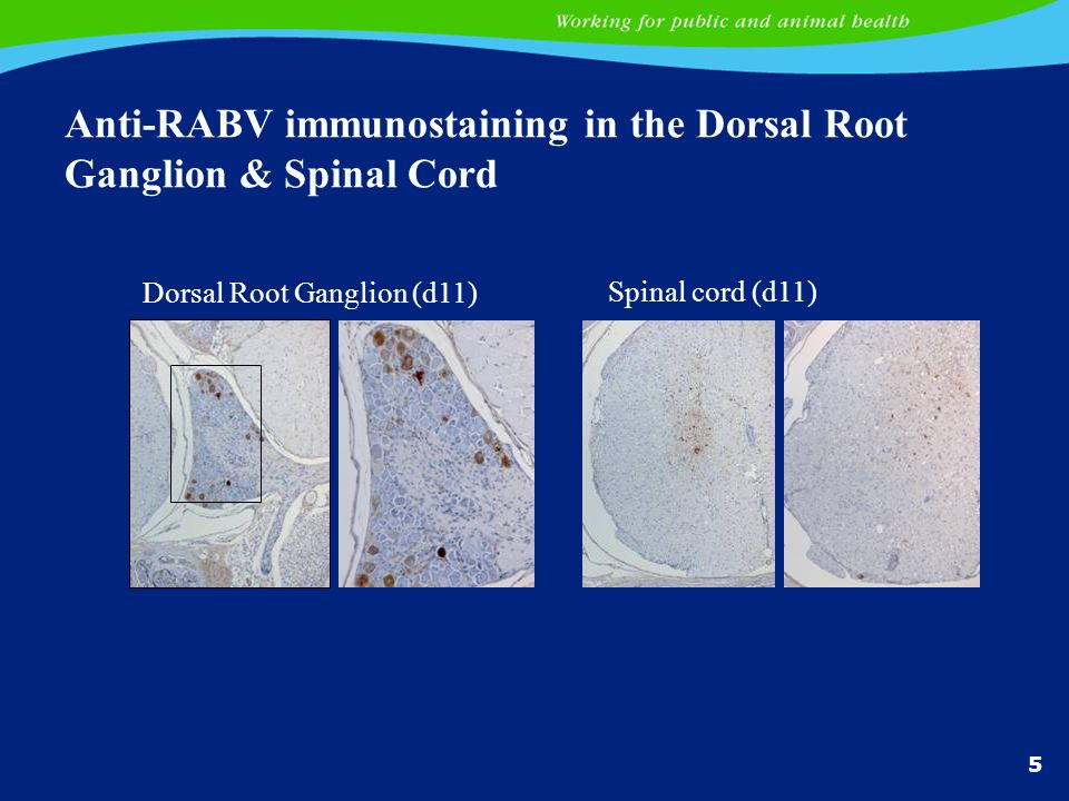 Anti-RABV immunostaining in the Dorsal Root Ganglion & Spinal Cord