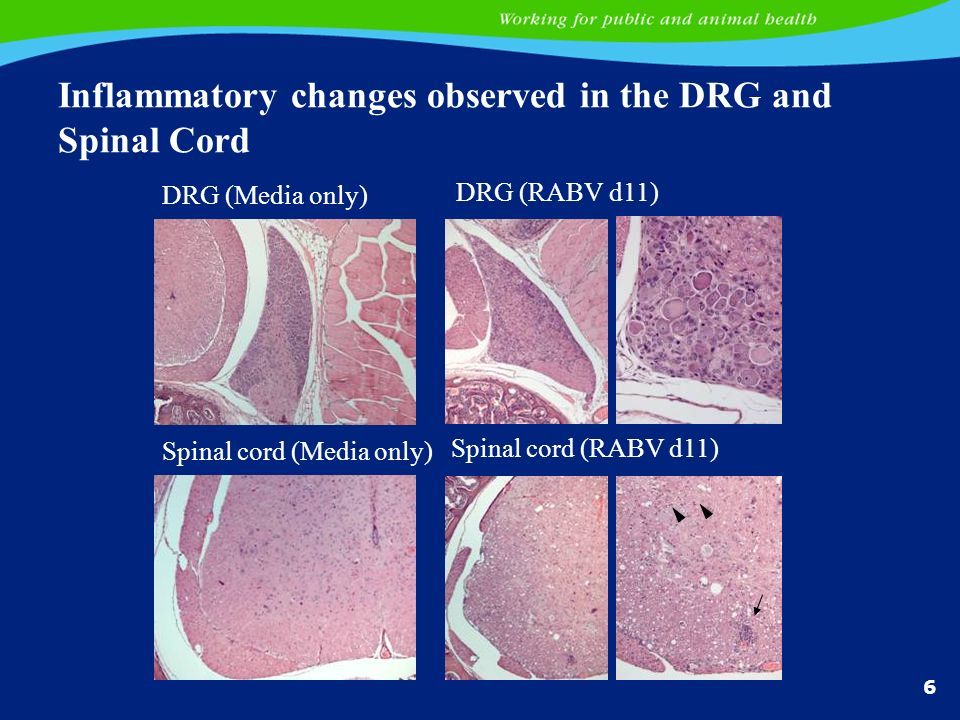Inflammatory changes observed in the DRG and Spinal Cord