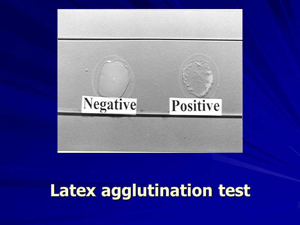 Latex agglutination test