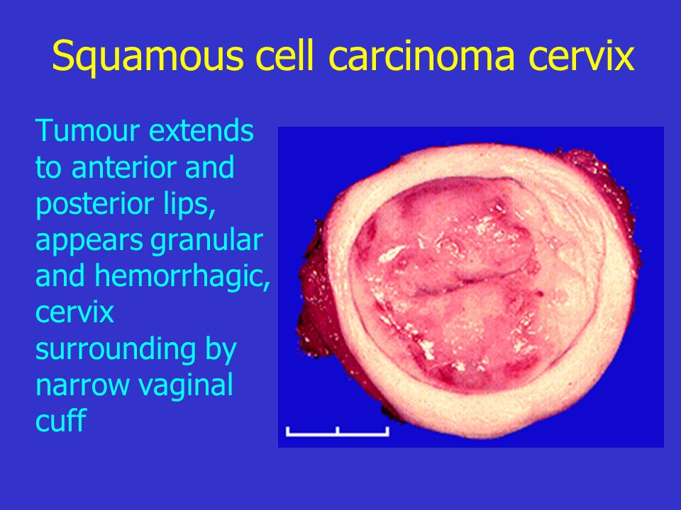Squamous cell carcinoma cervix