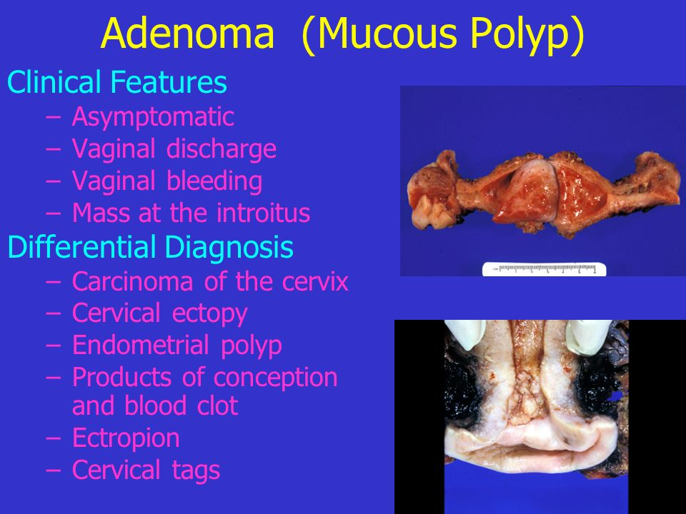 Adenoma (Mucous Polyp)