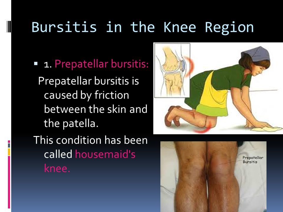 Joints Of The Lower Limb Ppt Video Online Download