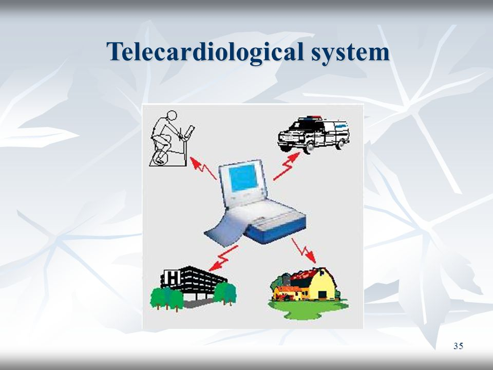 Telecardiological system