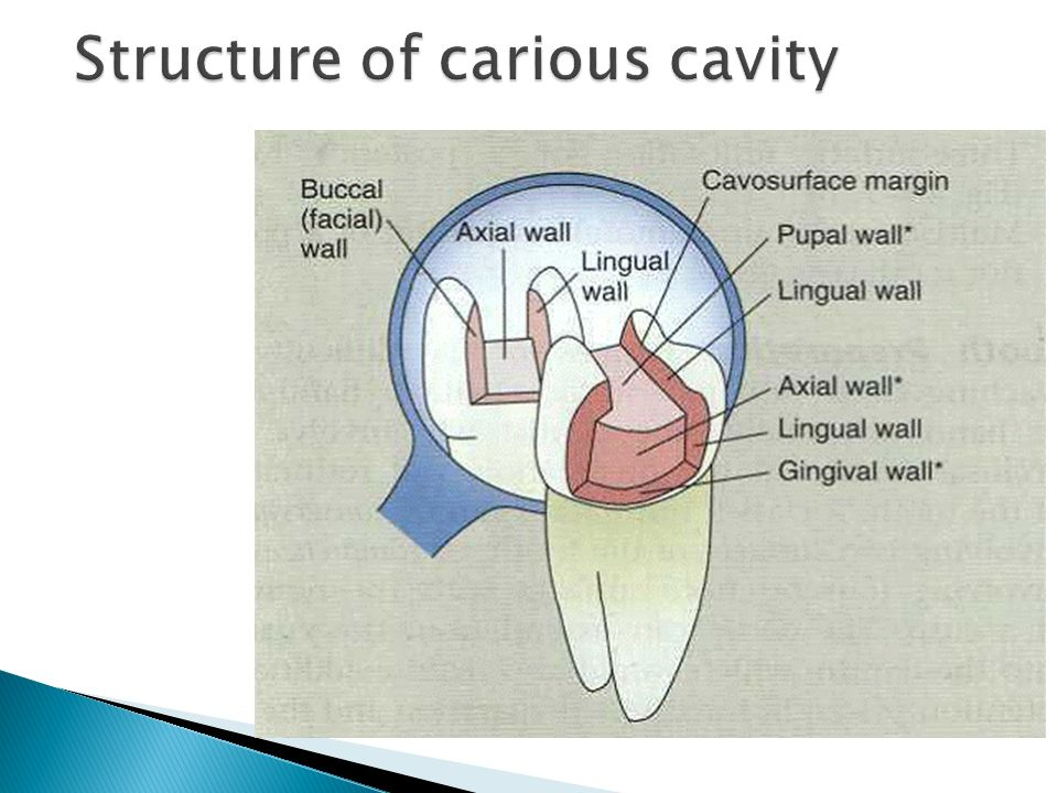 Structure of carious cavity