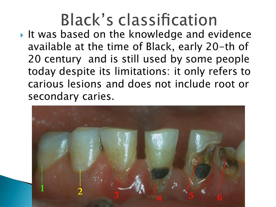 Black's classification