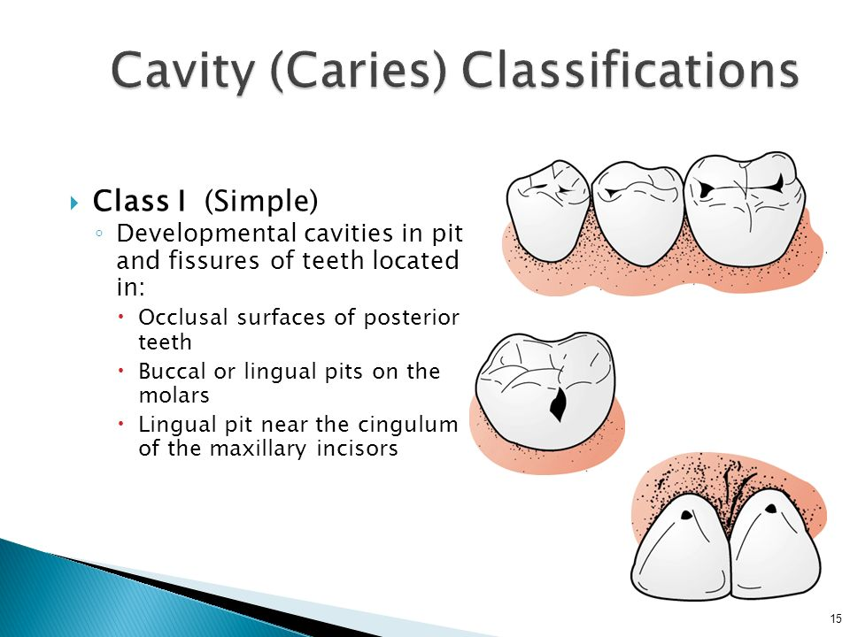 Cavity (Caries) Classifications