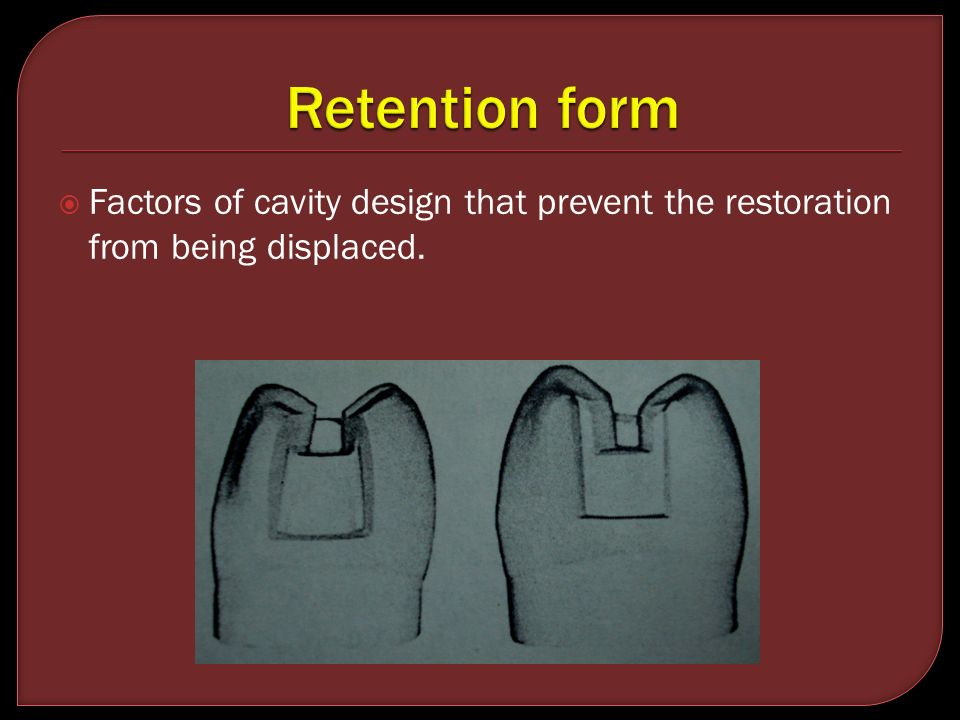 Retention form Factors of cavity design that prevent the restoration from being displaced.