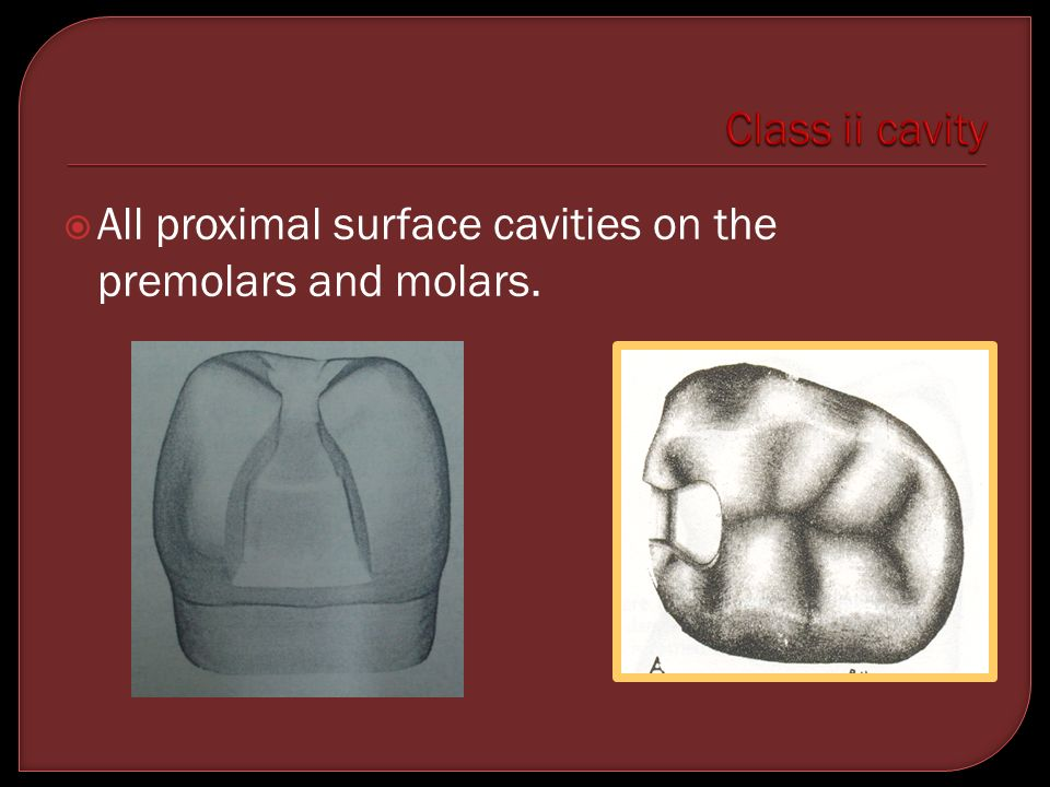 Class ii cavity All proximal surface cavities on the premolars and molars.