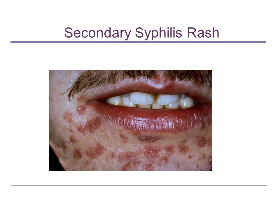 Primary Syphilis Rash Today's Contr...
