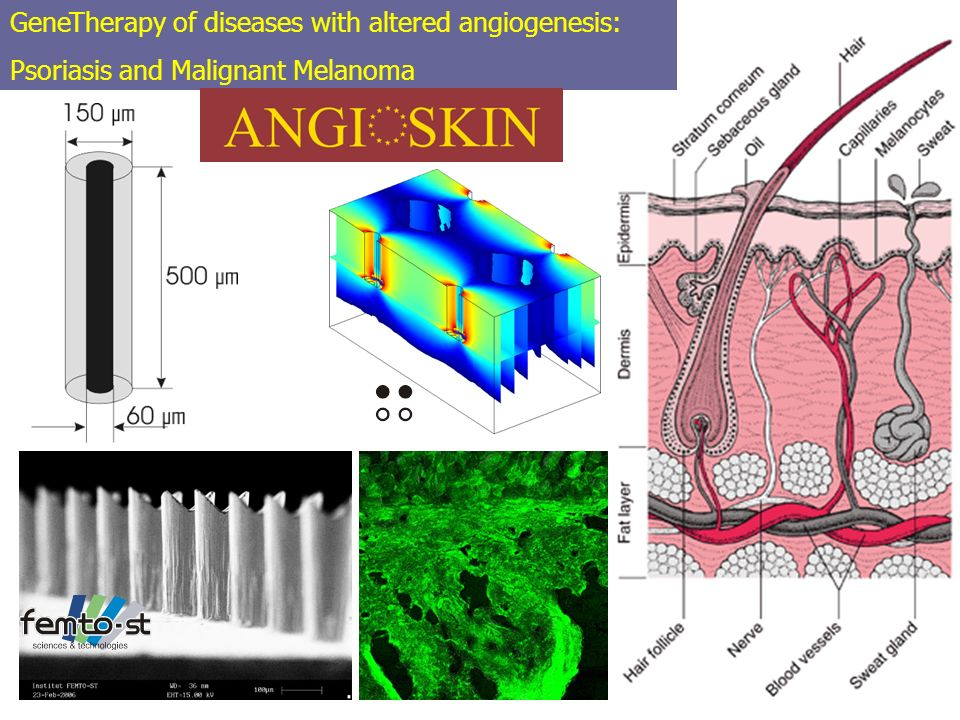 GeneTherapy of diseases with altered angiogenesis: