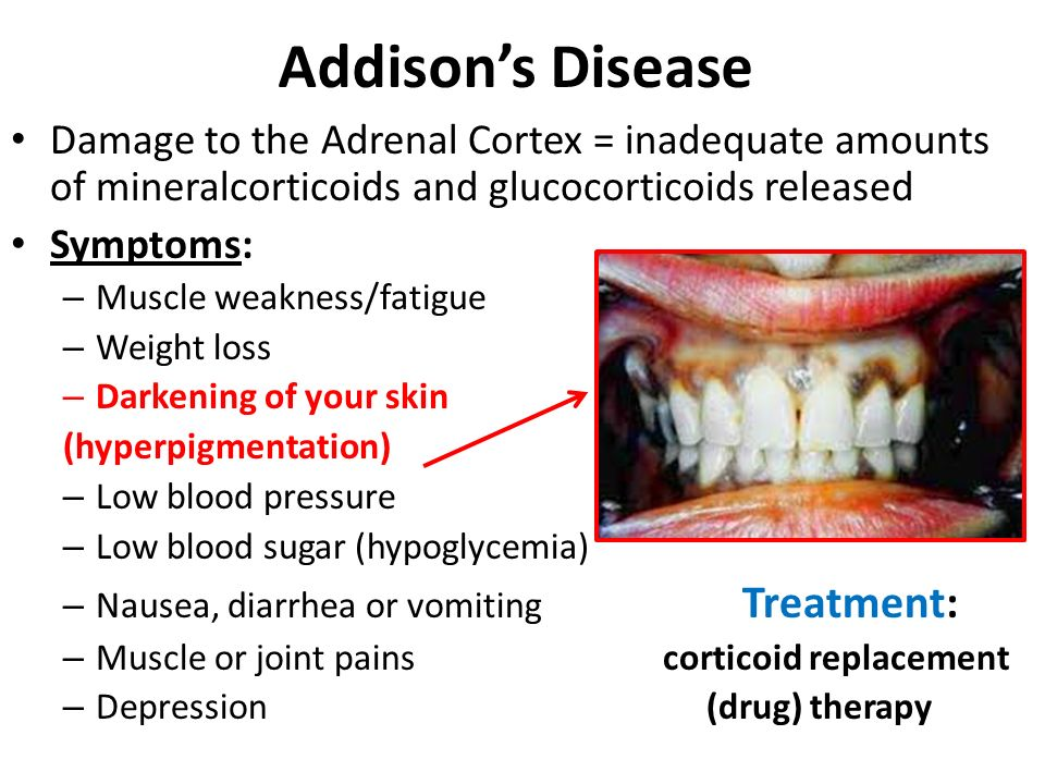 Addison's Disease Damage to the Adrenal Cortex = inadequate amounts of mineralcorticoids and glucocorticoids released.