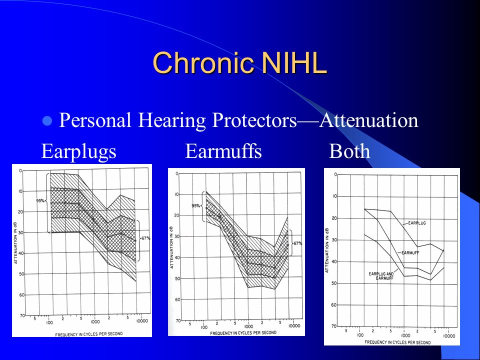 Noise Induced Hearing Loss - ppt video online download