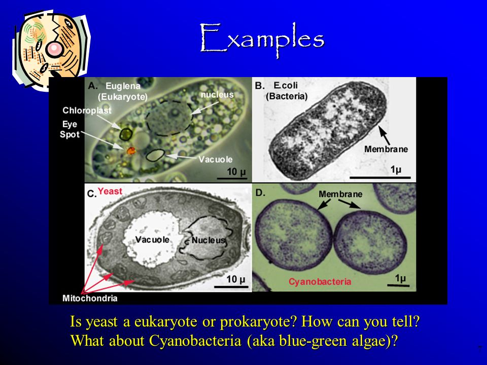 Examples Is yeast a eukaryote or prokaryote How can you tell