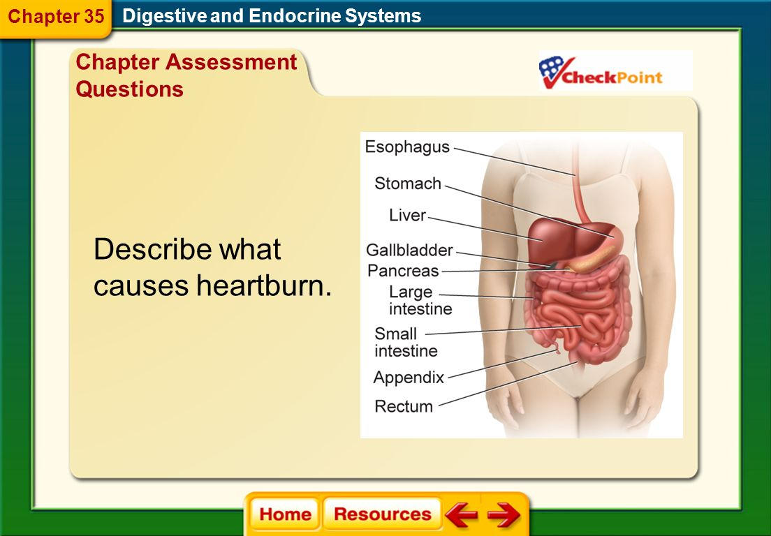 Describe what causes heartburn. Chapter Assessment Questions