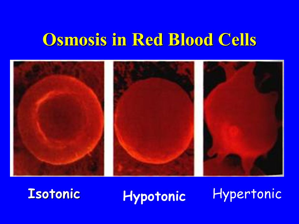 Osmosis in Red Blood Cells