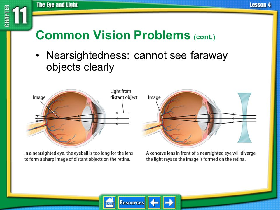 Common Vision Problems (cont.)