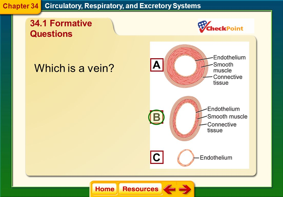 Which is a vein 34.1 Formative Questions Chapter 34