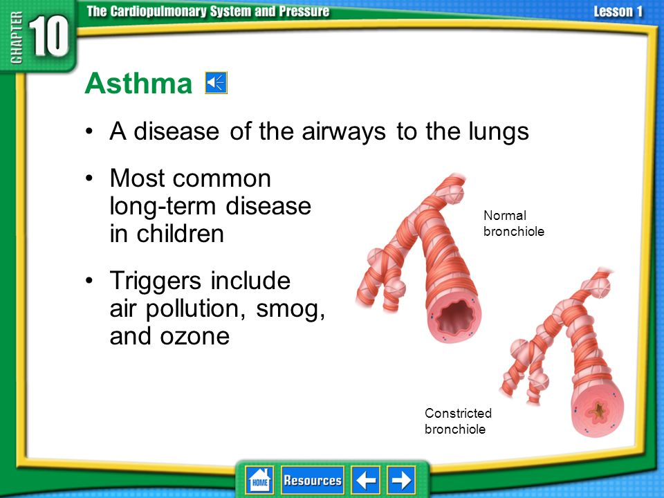 Asthma A disease of the airways to the lungs