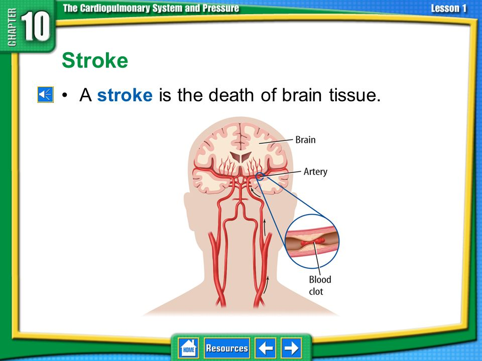 Stroke A stroke is the death of brain tissue.