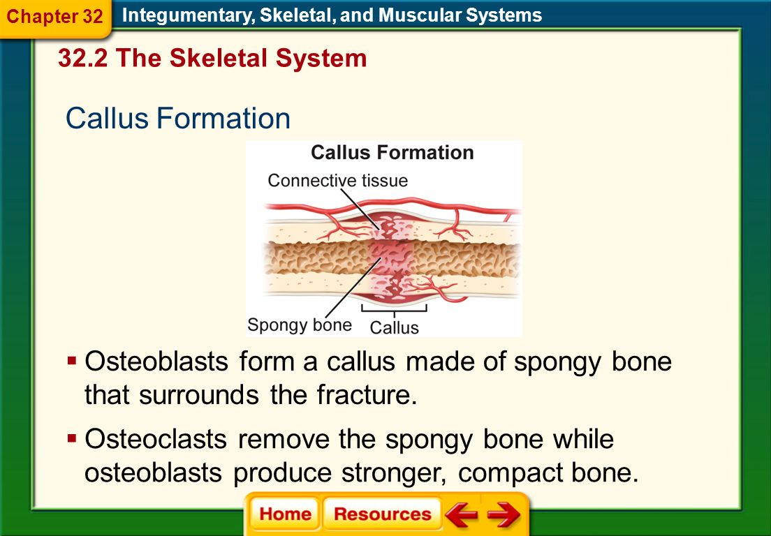 Chapter 32 Integumentary, Skeletal, and Muscular Systems. 32.2 The Skeletal System. Callus Formation.