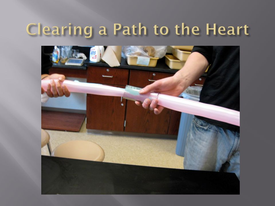 Clearing a Path to the Heart