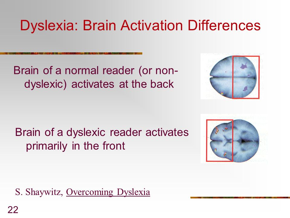 Dyslexia: Brain Activation Differences