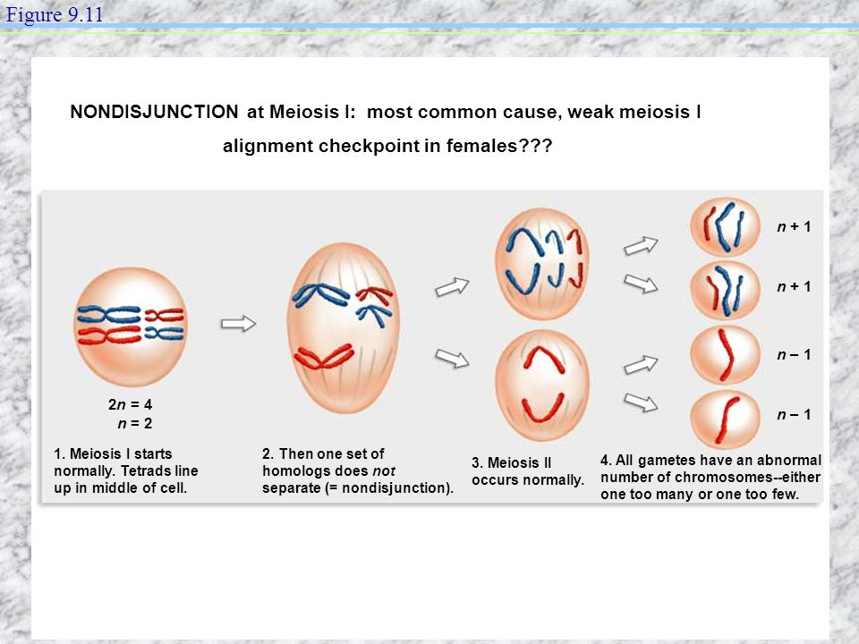 Figure 9.11 NONDISJUNCTION at Meiosis I: most common cause, weak meiosis I. alignment checkpoint in females