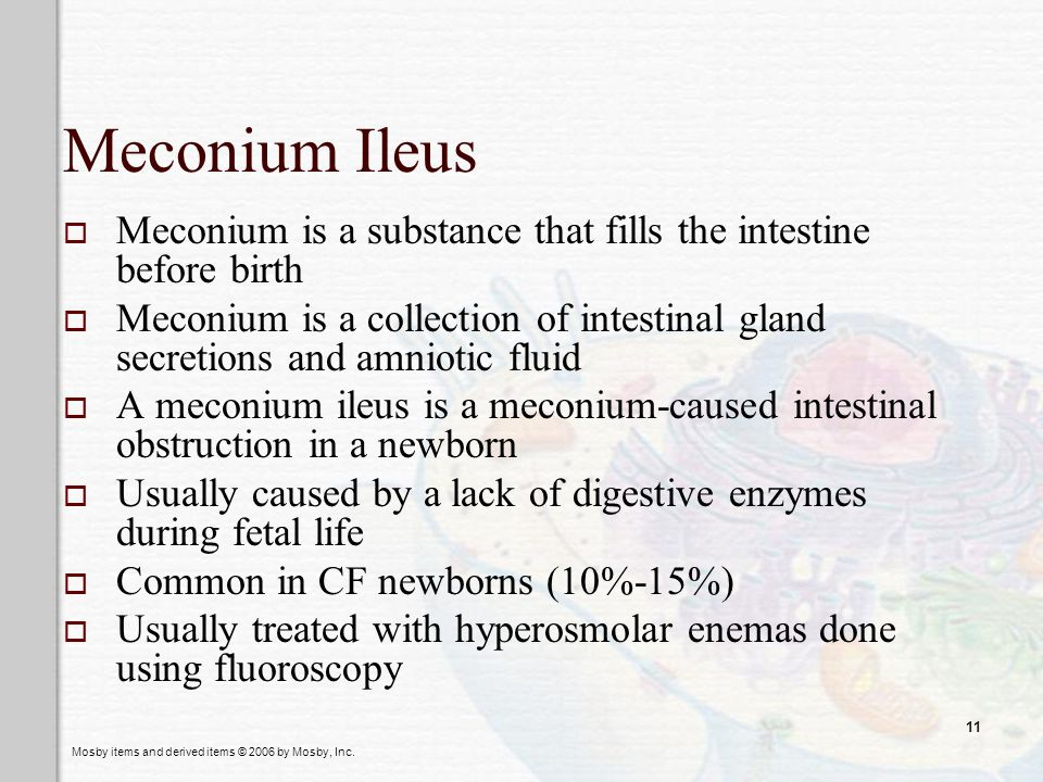 Meconium Ileus Meconium is a substance that fills the intestine before birth.