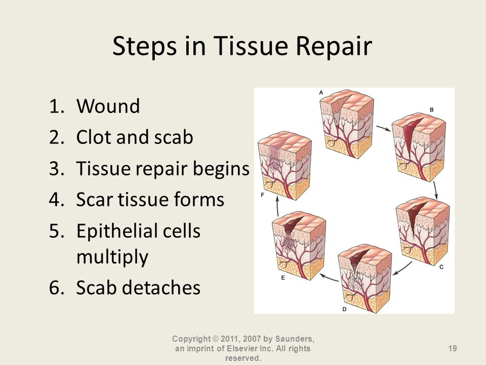 Steps in Tissue Repair Wound Clot and scab Tissue repair begins