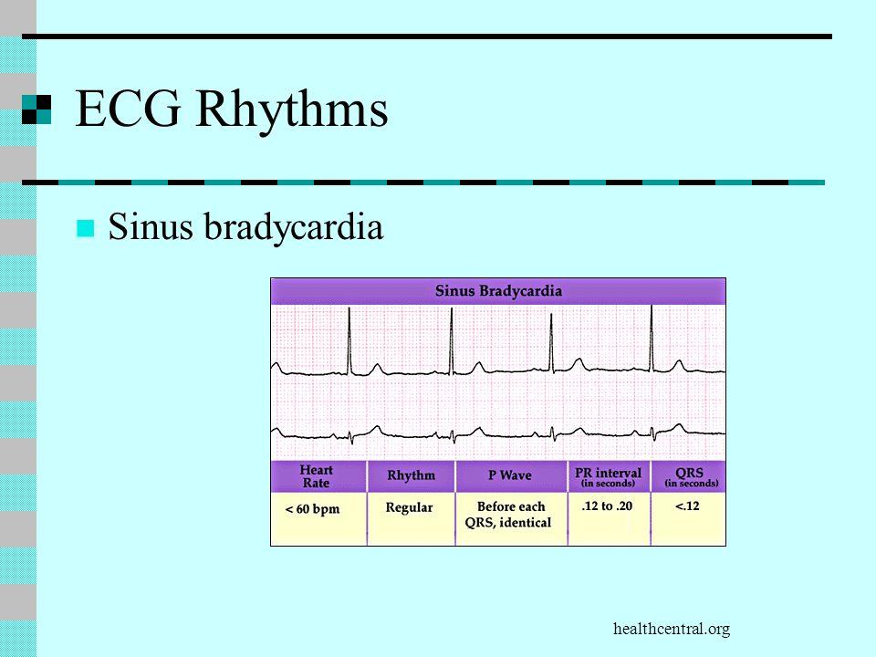 ECG Rhythms Sinus bradycardia healthcentral.org