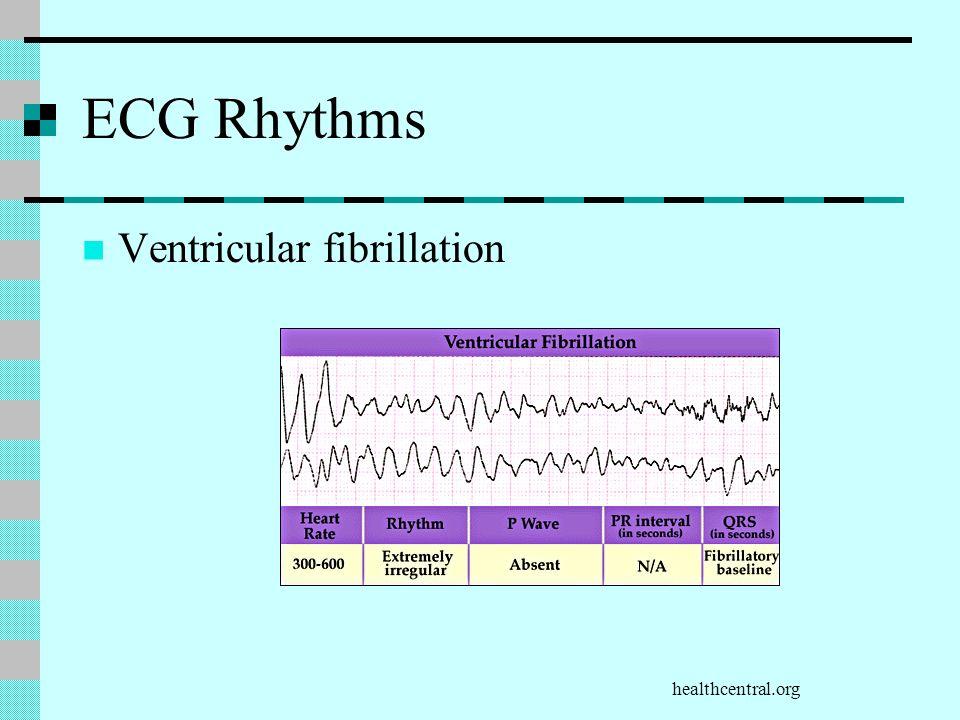 ECG Rhythms Ventricular fibrillation healthcentral.org