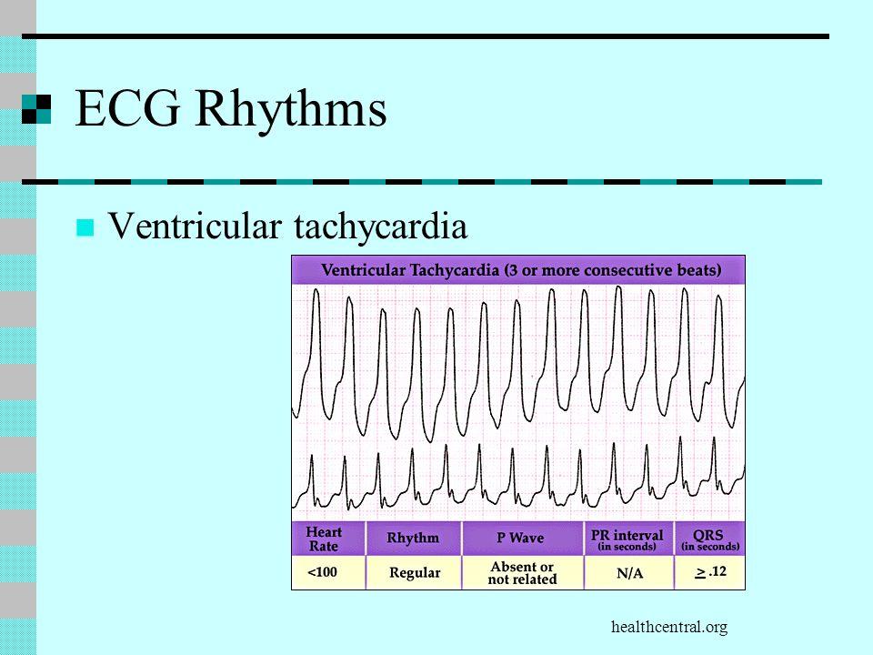 ECG Rhythms Ventricular tachycardia healthcentral.org