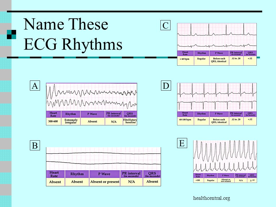 Name These ECG Rhythms C A D E B healthcentral.org