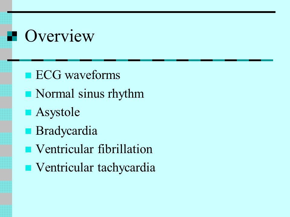 Overview ECG waveforms Normal sinus rhythm Asystole Bradycardia