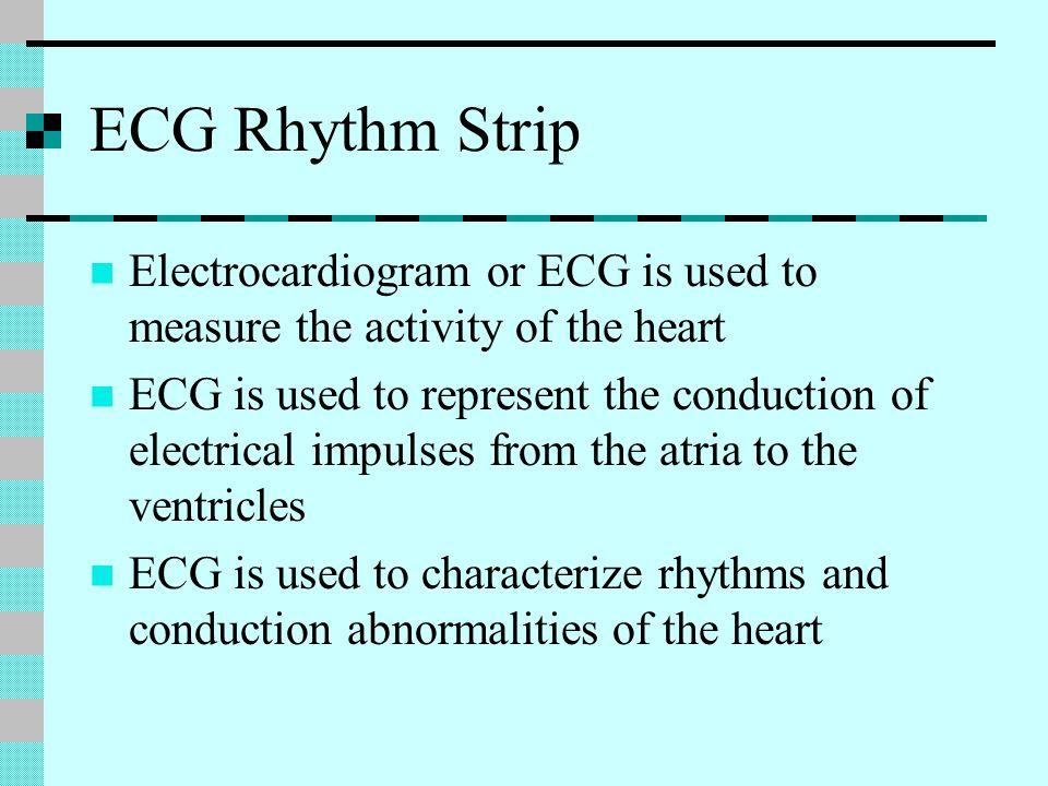 ECG Rhythm Strip Electrocardiogram or ECG is used to measure the activity of the heart.
