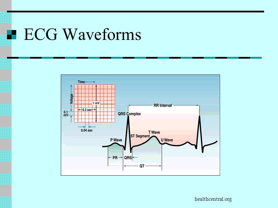 ECG Waveforms healthcentral.org