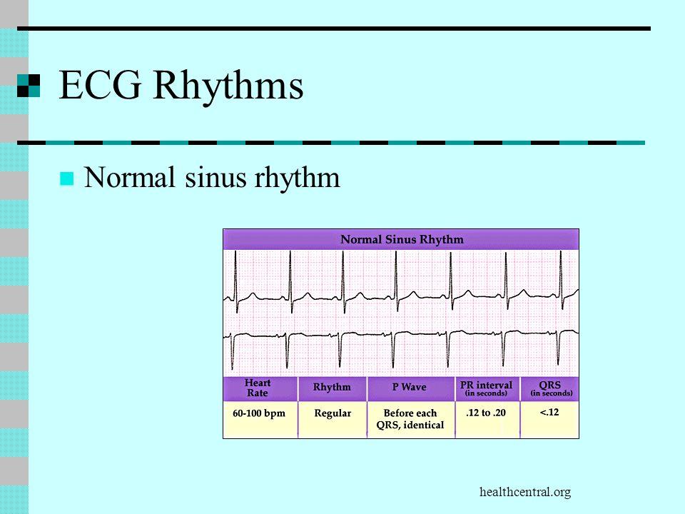 ECG Rhythms Normal sinus rhythm healthcentral.org