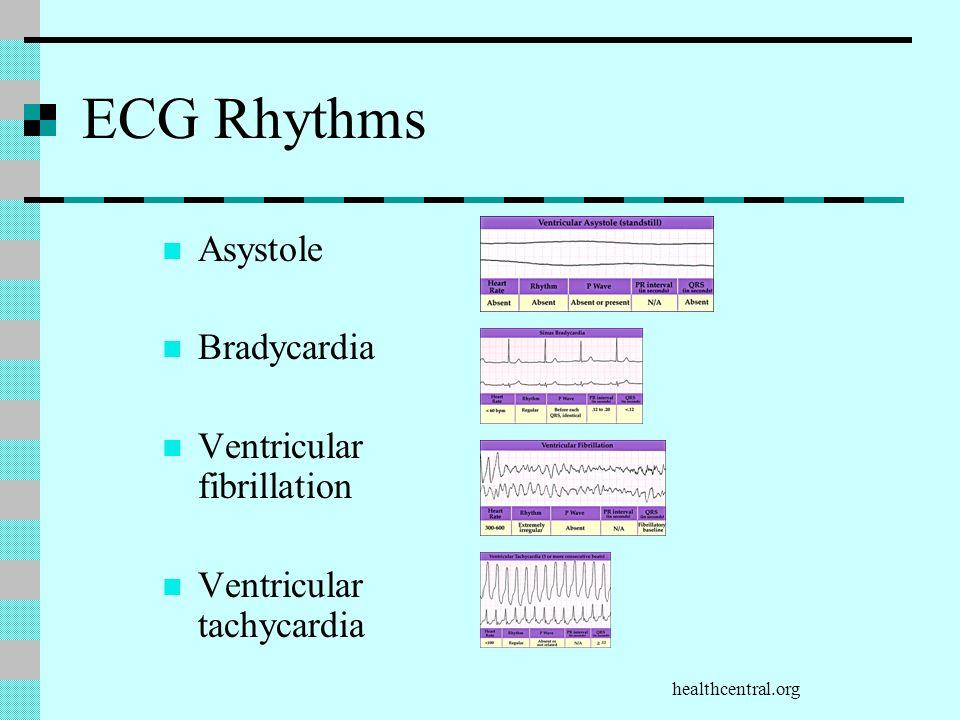 ECG Rhythms Asystole Bradycardia Ventricular fibrillation