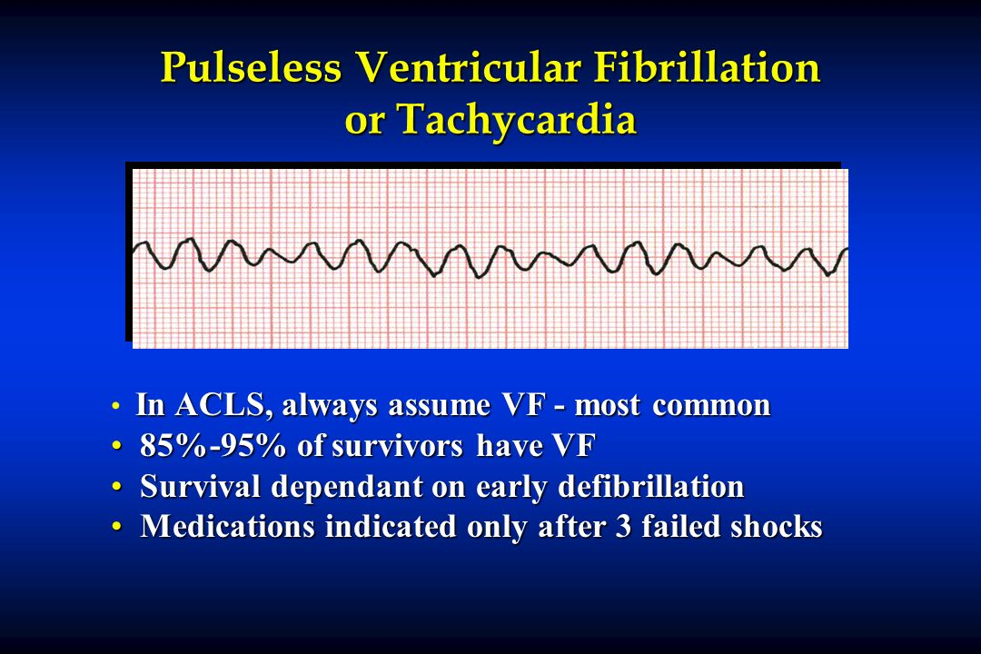 Pulseless Ventricular Fibrillation or Tachycardia