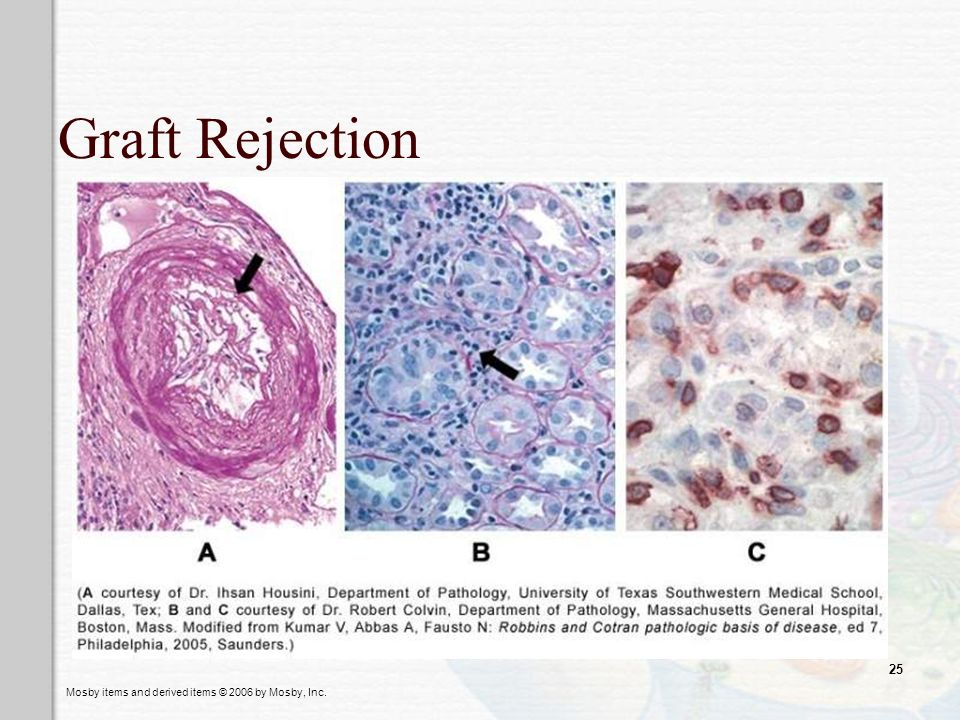 Graft Rejection