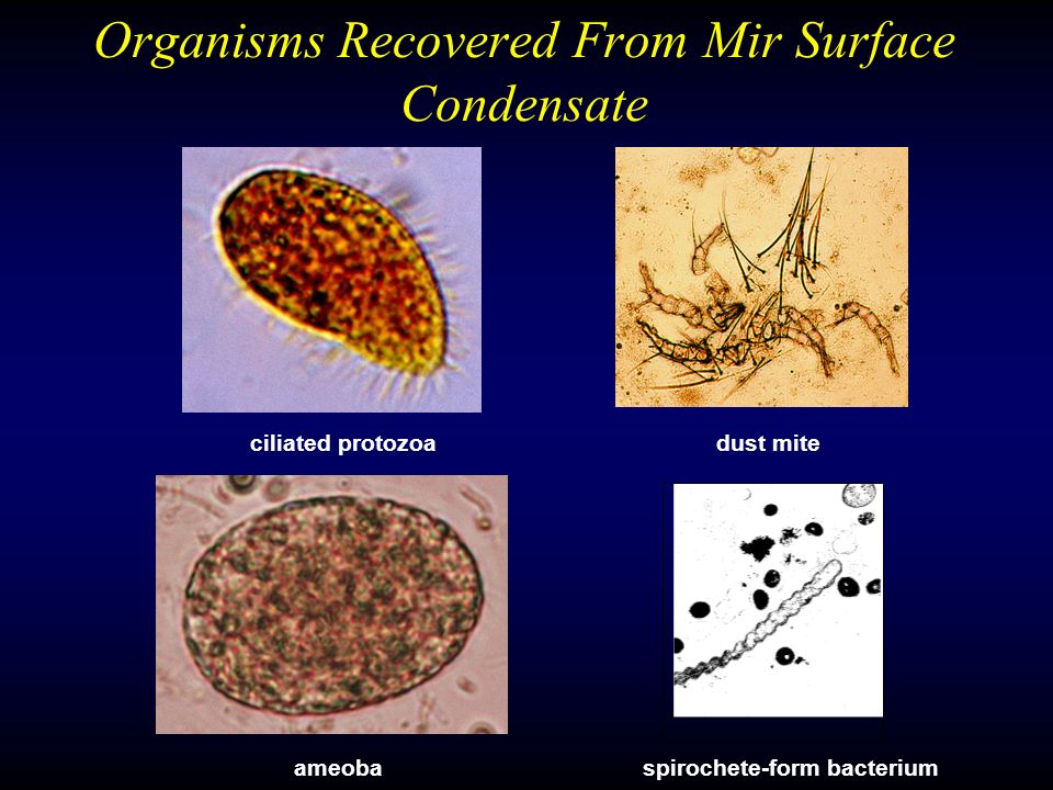 Organisms Recovered From Mir Surface Condensate