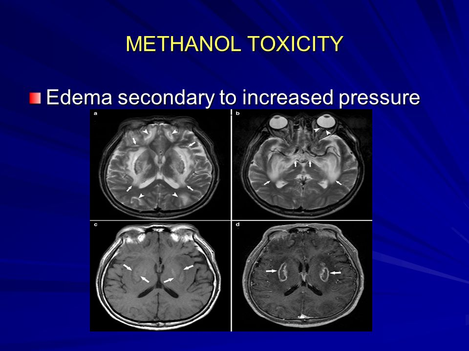 Edema secondary to increased pressure